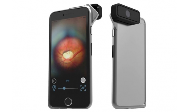 D-EYE, el oftalmoscopio digital para iPhone